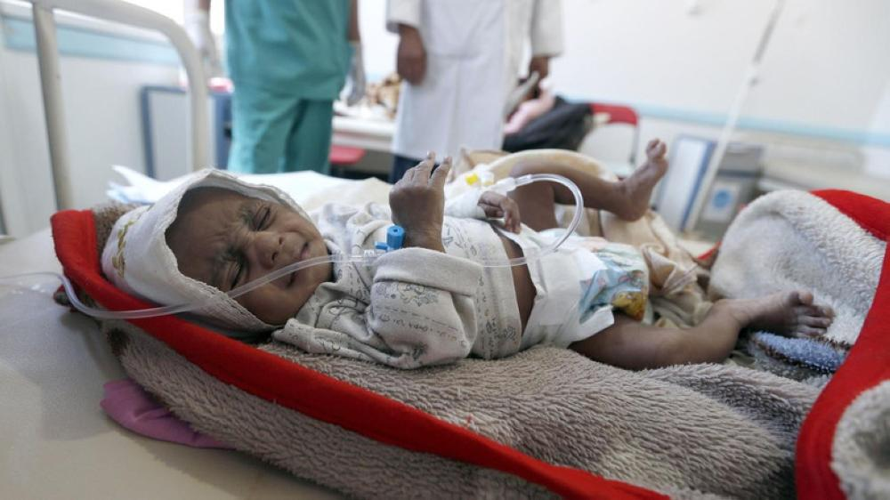 A Yemeni child suspected of being infected with cholera receives treatment in Sanaa. — AFP