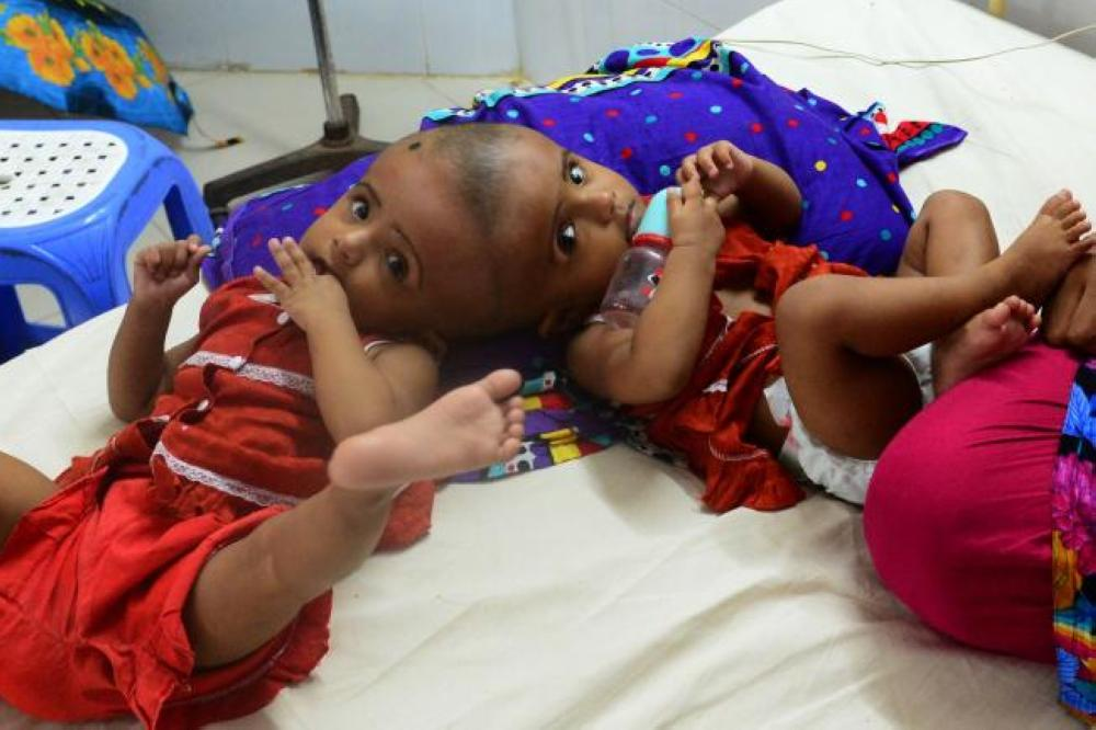 Bangladeshi conjoined twins baby girls Rabia and Rukia are seen during their visit to a hospital in Dhaka on Tuesday. — AFP