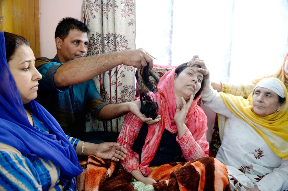 In this photograph, Kashmiri resident Tasleema (C), and the victim of a 'braid chopping', reacts as a kin displays her hair, which was chopped off in an attack, in the Batamaloo area of Srinagar. — AFP