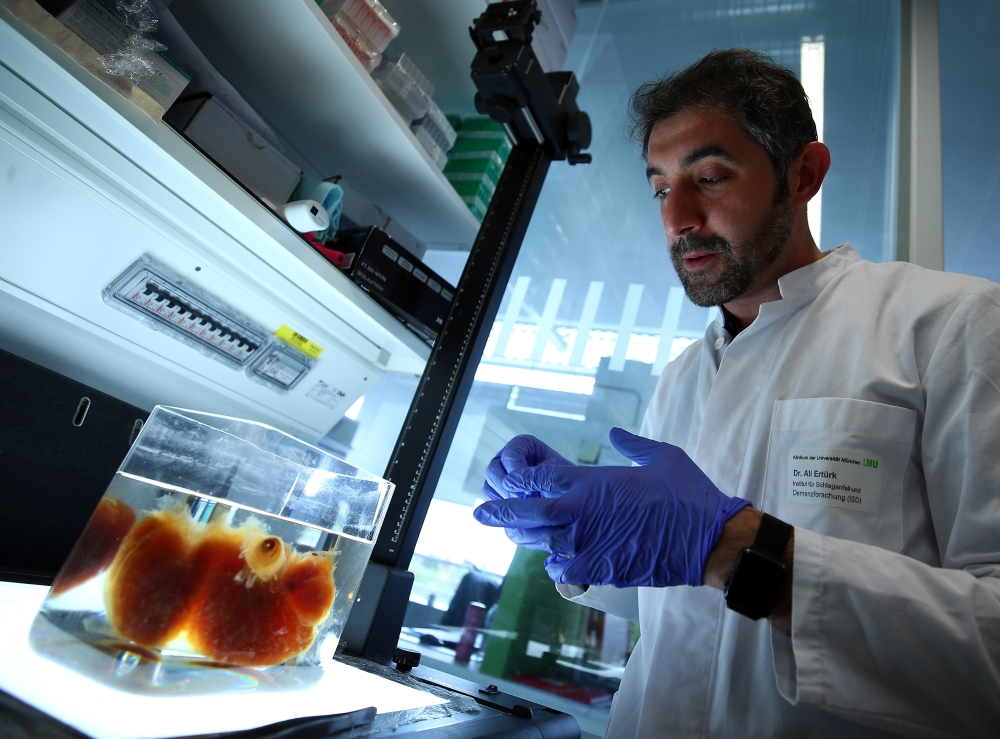 Dr. Ali Ertuerk, Group Leader at the Institute for Stroke and Dementia Research (ISD) at the Ludwig Maximillian's University, looks at a transparent human brain at his laboratory in Munich, Germany, on Tuesday. — Reuters