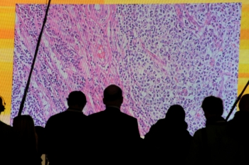 Cancer cells are seen on a large screen connected to a microscope at the CeBit computer fair in Hanover, Germany. -Reuters