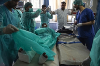 A wounded Afghan man receives treatment at the Wazir Akbar Khan hospital following a blast in Kabul on Tuesday. -AFP