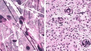 Stimulated Raman histologic images of diffuse astrocytoma (left) and meningioma (right). — Courtesy photo