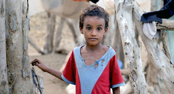 Millions of children across Yemen face serious threats due to malnutrition, in particular, and the lack of basic health services. All these threats are caused by the ongoing war and hostilities in the country. — File photo courtesy UNICEF/UN0276430/Almahbashi