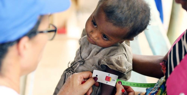 A child undergoes a malnutrition test in Madagascar. — courtesy WFP/Tsiory Andriantsoarana