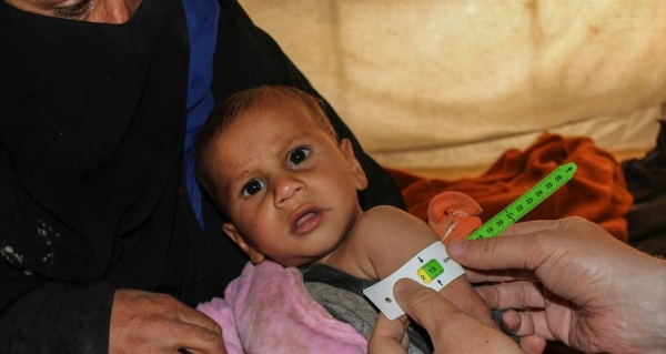 A baby is screened for malnutrition at Al-Hol camp in northern Syria. -- courtesy UNICEF/Masoud Hasen