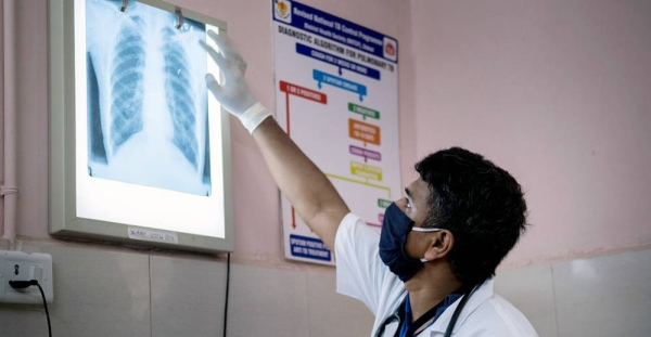 A doctor in Gujarat, India, checks a patient's chest x-ray for signs of tuberculosis or other lung infections. — courtesy UNICEF/Vinay Panjwani